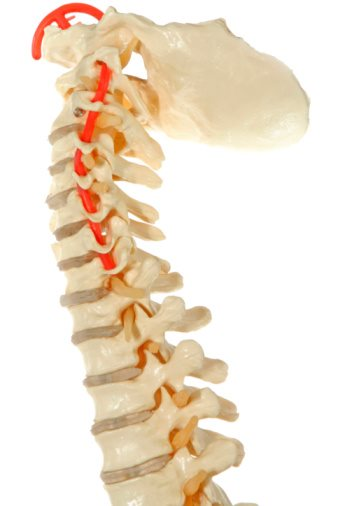 What to Know About Whiplash Injury Settlement?